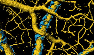 A buildup of misfolded proteins causes an exoskeleton (in blue) to form around blood vessels (in gold) in the brain.